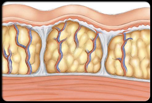cellulite 2