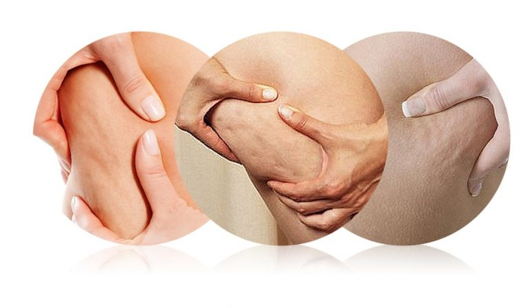 Massage cellulite