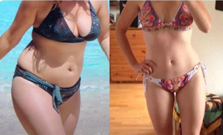 ventouse anti cellulite ventre