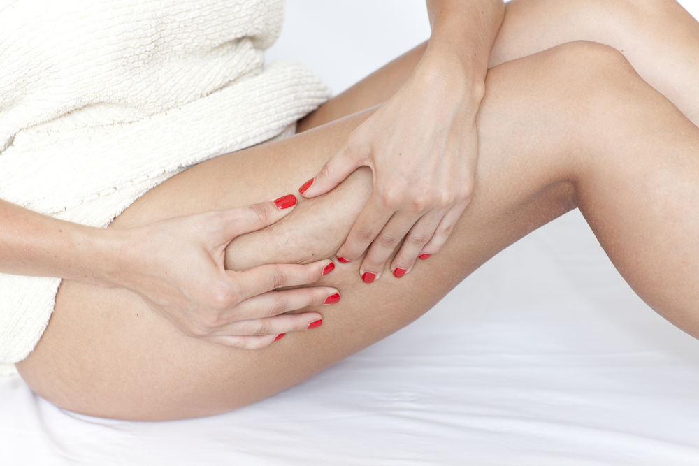 rétention d'eau cellulite aqueuse