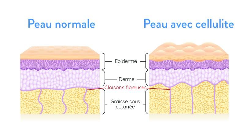 patrón de celulitis