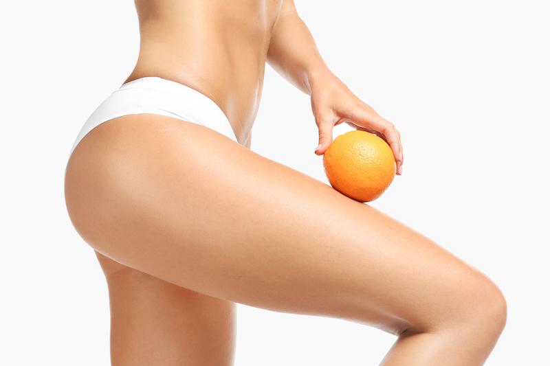 causes cellulite