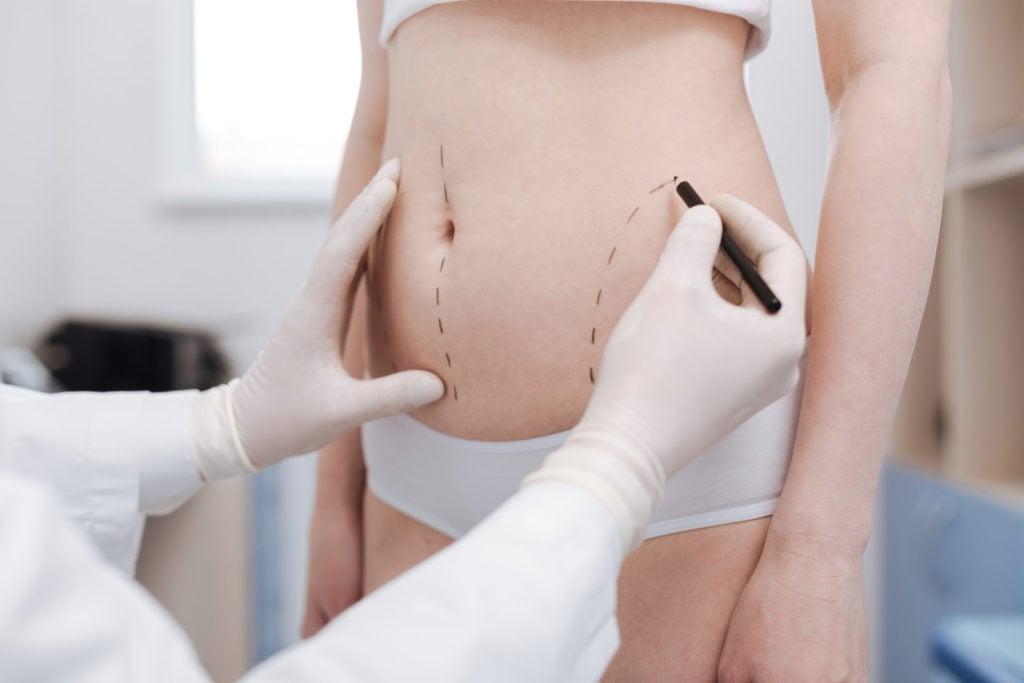 retendre-peau-ventre-chirurgie