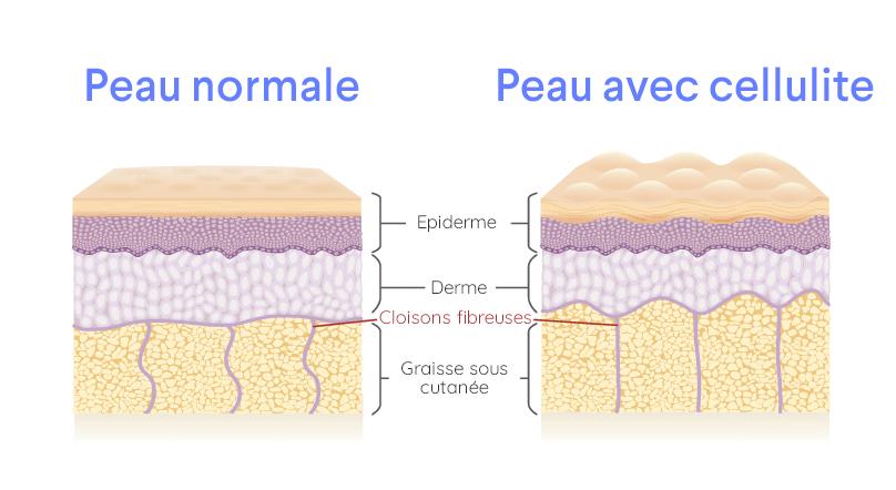 schema formation cellulite